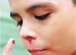 Quando o nariz sangra
